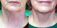 Exilis neck before and after