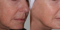 exilis neck before and after 2