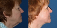 facelift-before-after-2-side