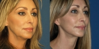 facelift-oblique-before-and-after
