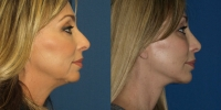 facelift-side-before-and-after