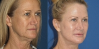 facelift san diego before after oblique
