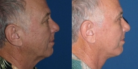 facelift-side-before-after2
