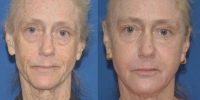Belafill and Juvederm Liquid Facelift