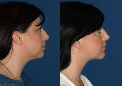 Necklift Before and After Photos San Diego