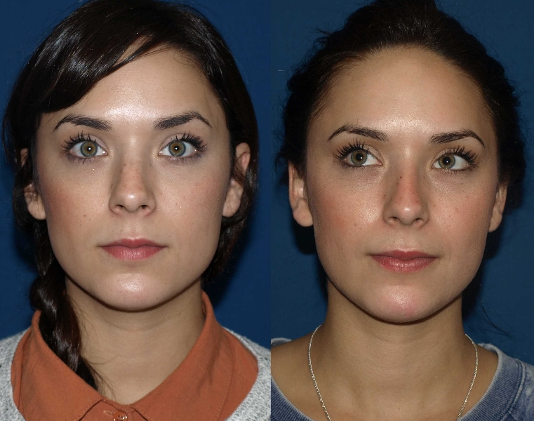 Revision Rhinoplasty Before And After Photos