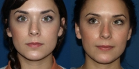 rhinoplasty-5-before-and-after-front