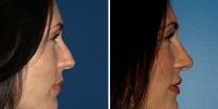 rhinoplasty-rev-4