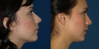 rhinoplasty5before-and-after-side