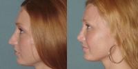 rhinoplasty before and after side view