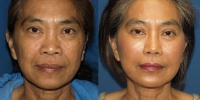 Asian rhinoplasty & face lift front