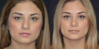 Open Rhinoplasty for crooked nose