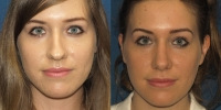 Open Rhinoplasty 1 before after front