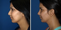 rhinoplasty-2-left