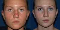 rhinoplasty-b-and-a-front