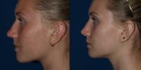 rhinoplasty-b-and-a-side