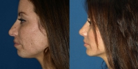 rhinoplasty-before-and-after-side