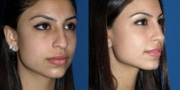 sd-before-after-oblique