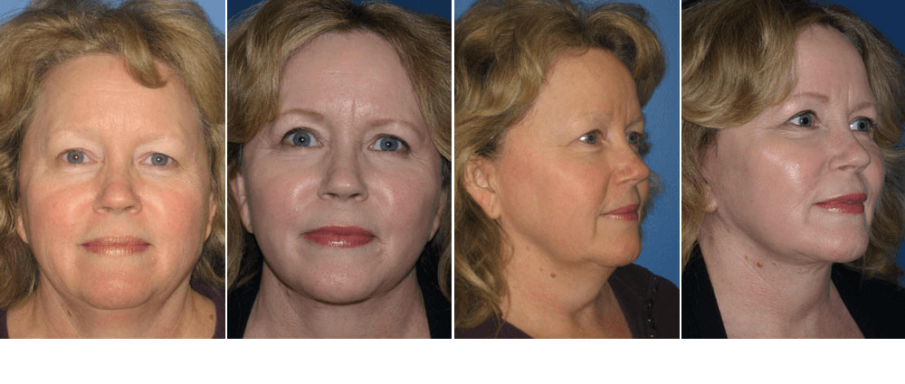 facelift before and after photos of san diego patient