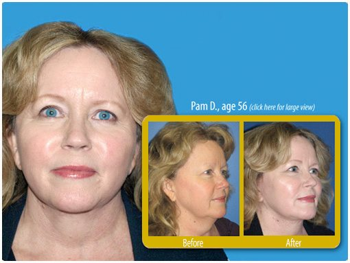 Mini facelift patient in San Diego displaying before and after photos