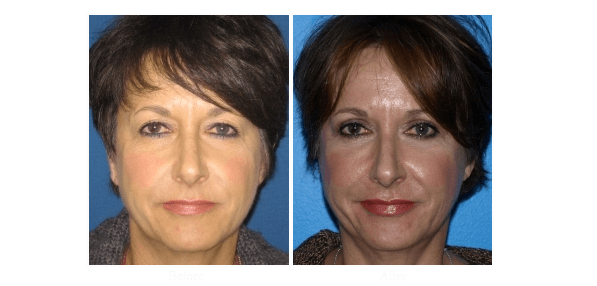 Eyelid Surgery San Diego | Best Eyelid Surgeon La Jolla