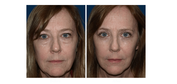 Eyelid surgery patient before and after photo - worked performed by Dr Roy David