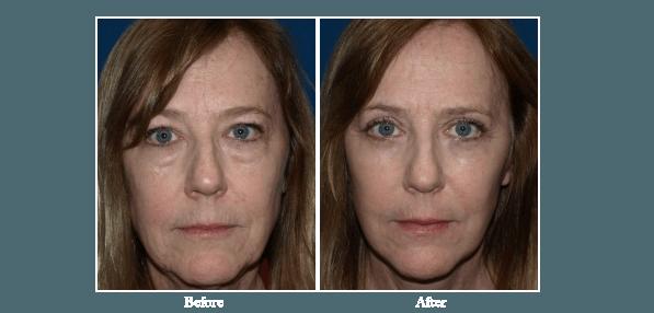 Eyelid Surgery San Diego | Best Eyelid Surgeon La Jolla