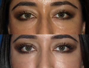 eyes before and after vertical