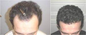hairline 2 before and after