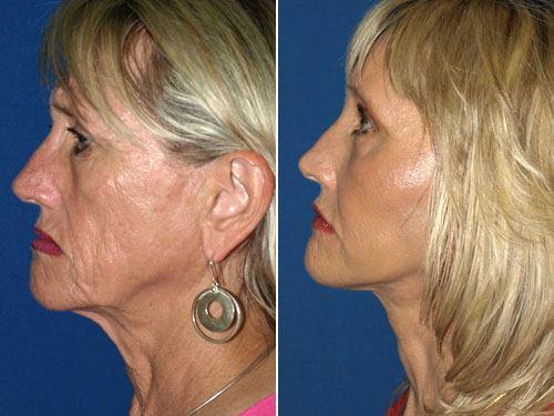 Facelift San Diego,Facelift La Jolla,Best Facelift Surgeon