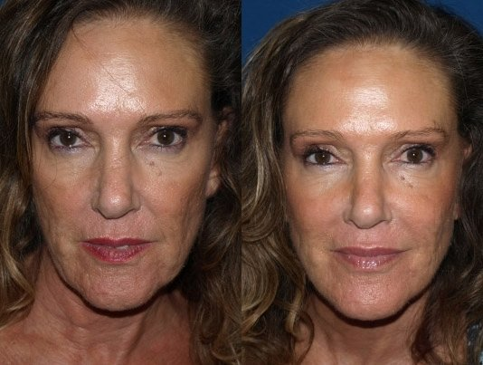 Liquid Facelift San Diego Facial Filler Facelift San Diego