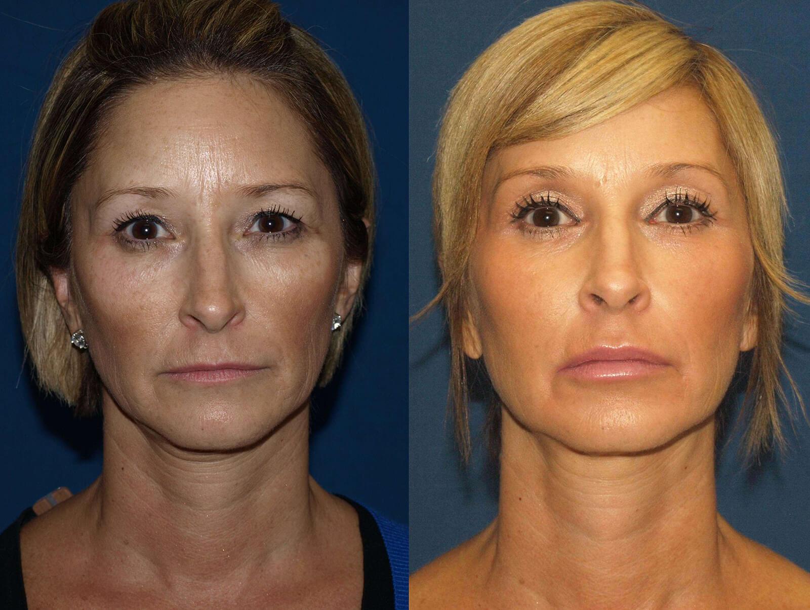 Facial Fillers: Avoiding Complications (Transcript)