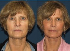 Facial Fat Grafting Facelift offers Cost-Effective and Non-Invasive Solution to Facelift