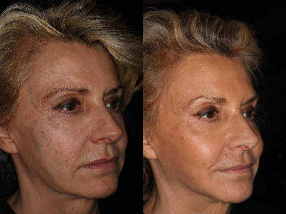 face tightening without surgery