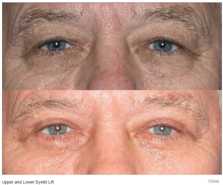 Dr. Roy David Discusses the One Hour Eyelift