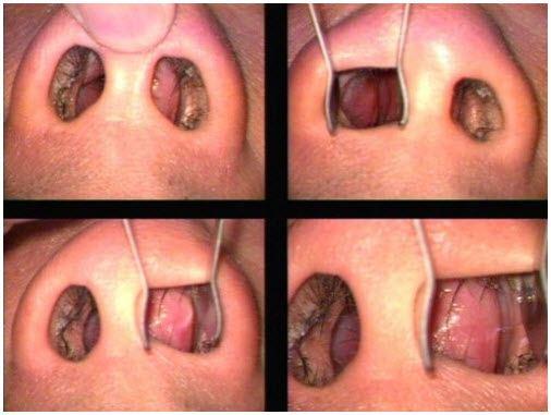 deviated septum repair