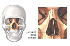 deviated septum image
