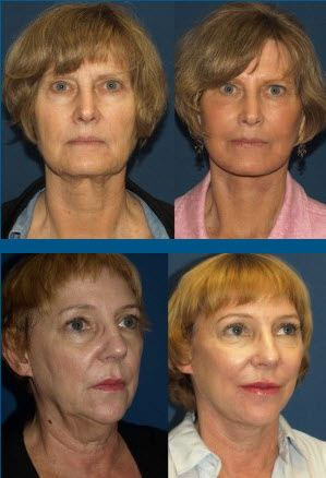 The Non-Surgical Facelift That Really Works