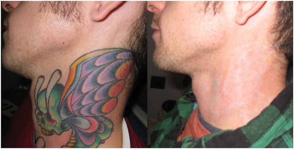 Laser Tattoo Removal San Diego | Tattoo Removal by Laser |