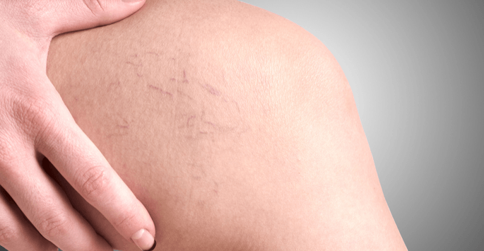 Spider Veins Treatment: What Are My Options?